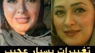 عکس قبل و بعدِ الهام حمیدی در پی جراحی های زیبایی !/ تغییرات باورنکردنی الهام حمیدی + عکس