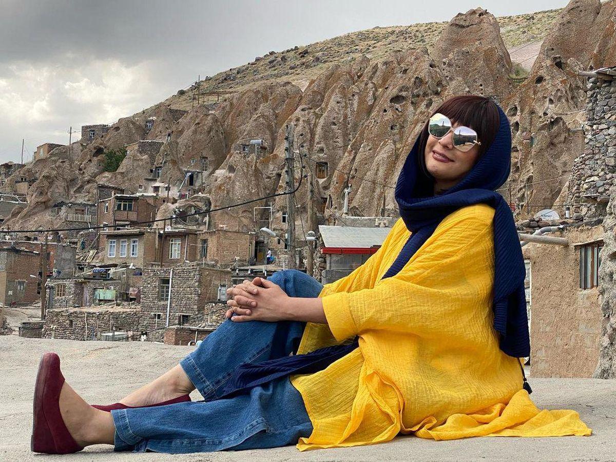 تیپ زرد مارال فرجاد با شلوار کوتاه و پاهای برهنه + عکس
