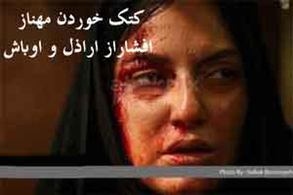 کتک خوردن مهناز افشار از اراذل/ خفت گیری مهناز افشار در خیابان + عکس